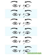 常见斜视种类