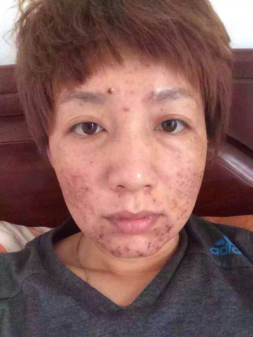 脸上有小米粒疙瘩_脸上长小疙瘩,不痛不痒是什么情况
