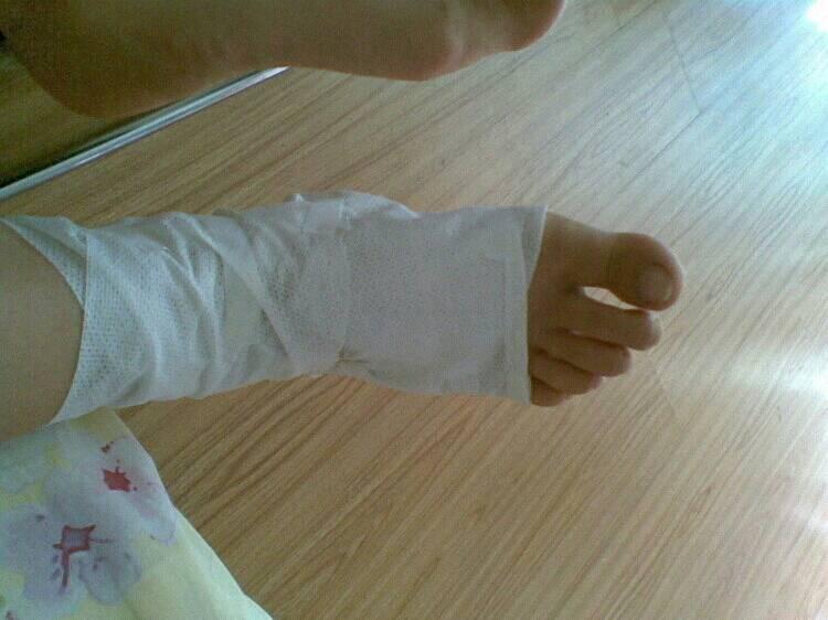 我今天中午在学校跑步脚扭伤了