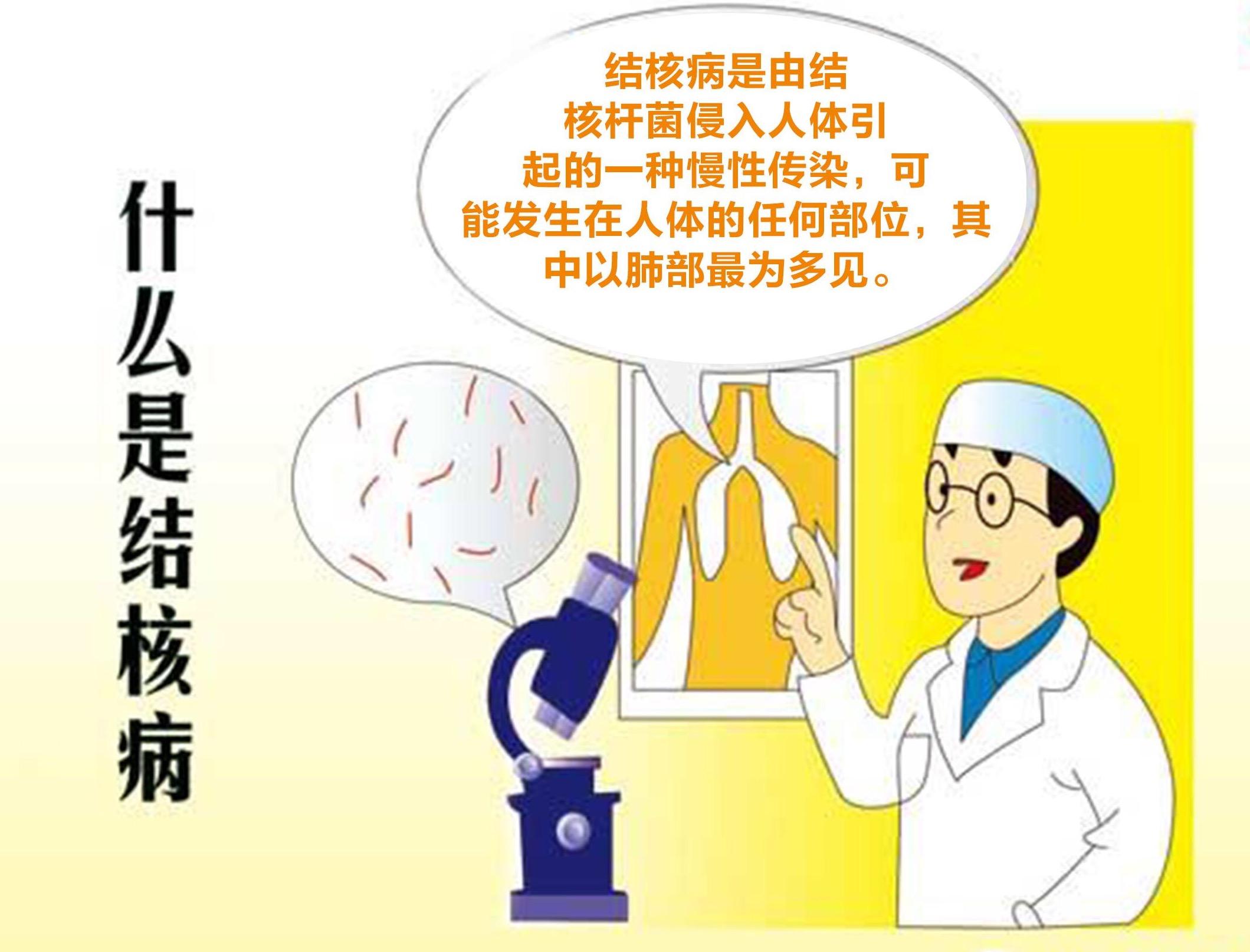 肺结核会不会传�_为什么肺结核至今仍然是全球死亡人数最多的单一传染病?