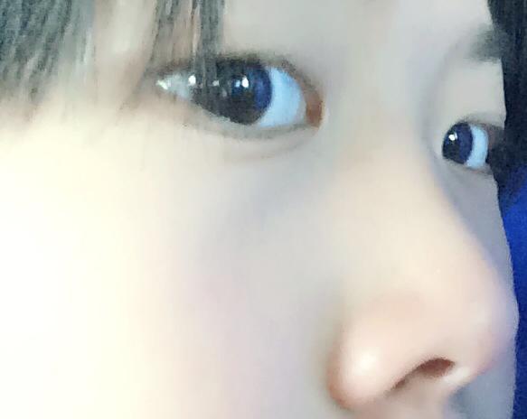 2014-01-15 吴国旺 医师 宝宝鼻头大鼻小柱往里陷长大后会是塌鼻子吗?图片