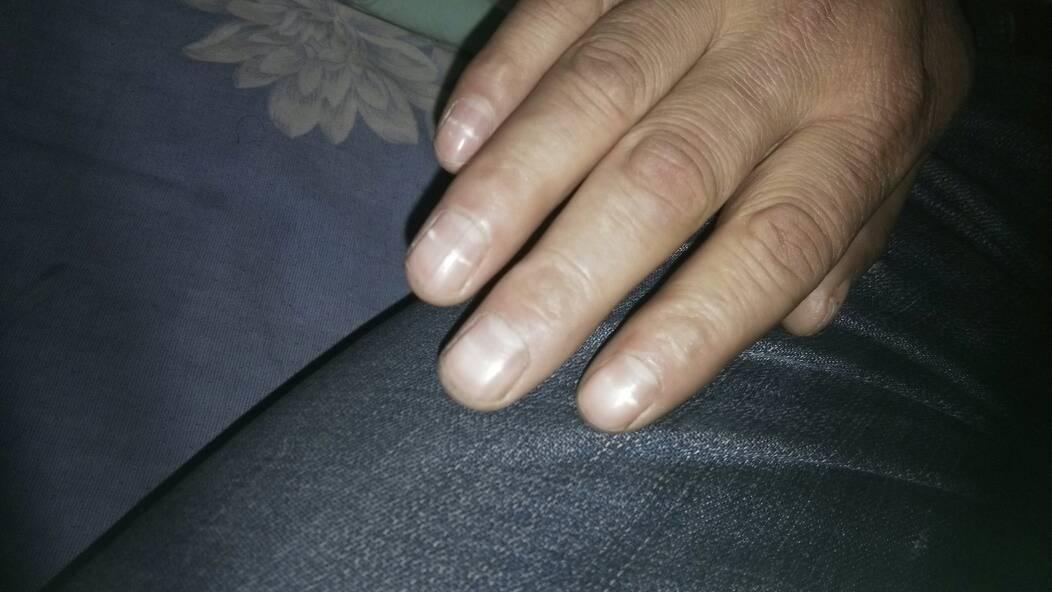 手指甲上有白色的物质,每个手指甲都有.是怎么回事图片