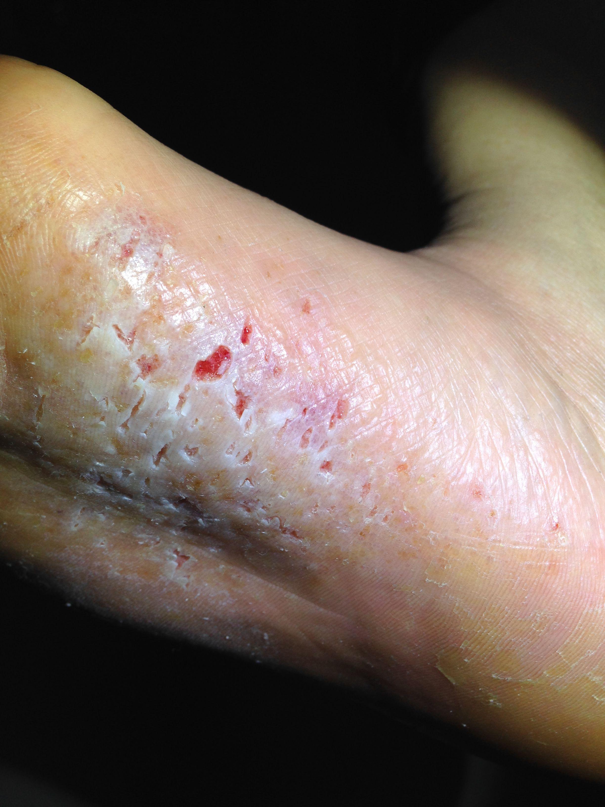 脚上真菌感染,原来无脚气