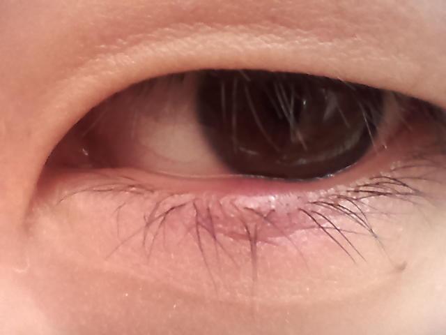 眼球上长了个白色疙瘩_我的一只眼睛老是红肿刺痒,可以看清东西晚上睡觉第二