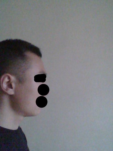额头有点高,前额头发呈m型的男生适合理什么发型?最好图片