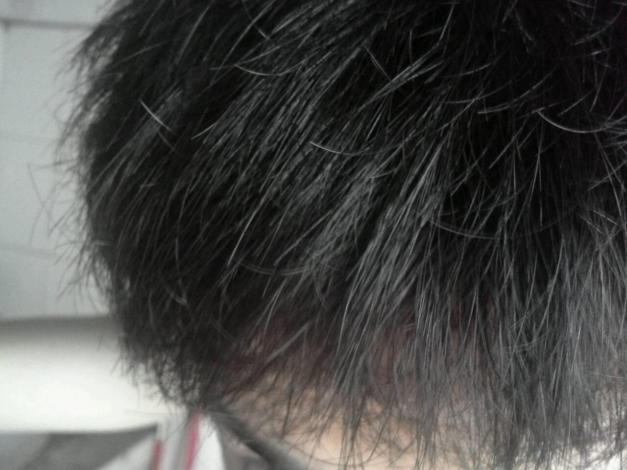 我头发每天都洗,变得干枯毛躁还很硬,怎么变回柔顺!图片