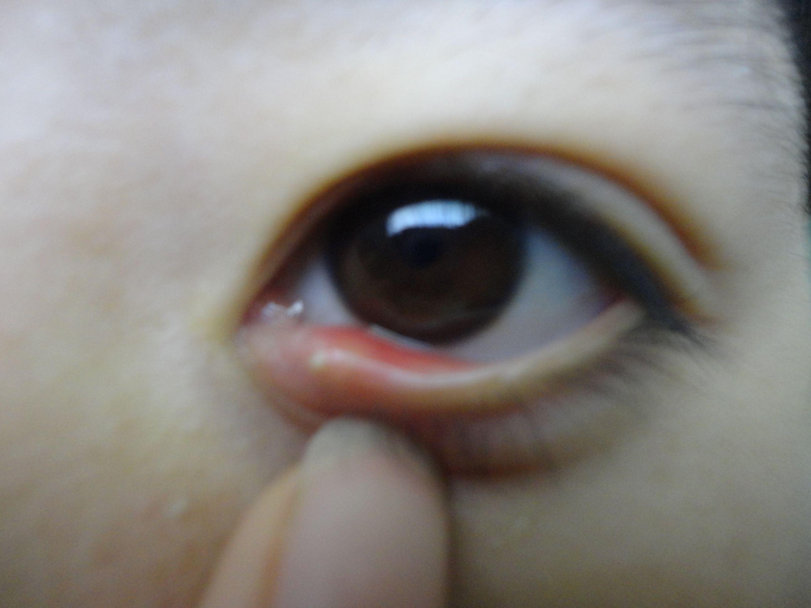 我的眼睛这是怎么了 昨天开始感觉眨眼比较疼有点肿