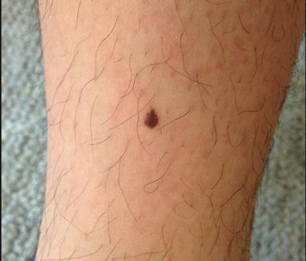 黑色素瘤早期囹�a_黑色素瘤早期症状