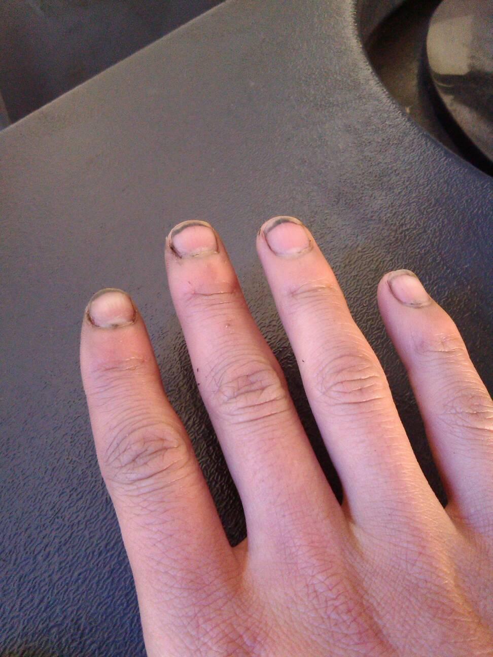 0回答 20 手指甲粉红色部分从中间横着断了,能再长出来吗?图片