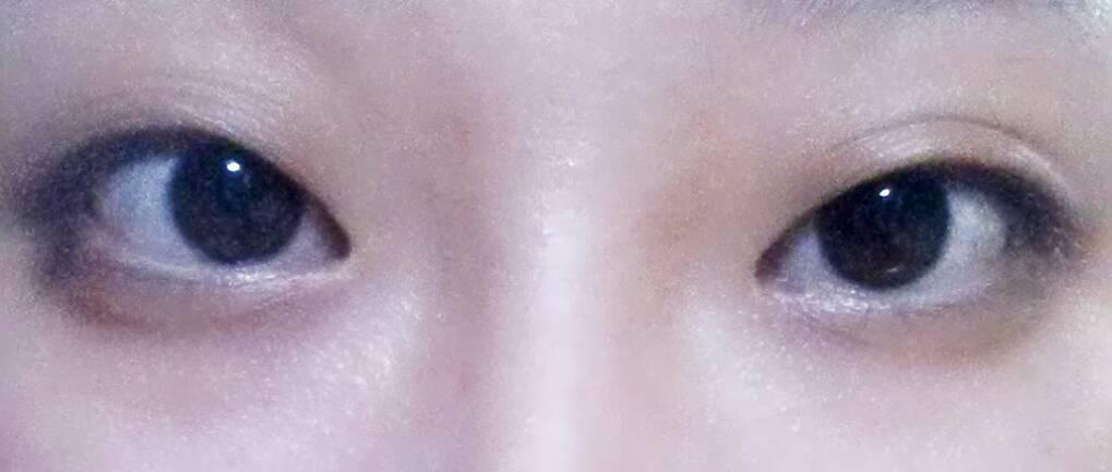 我的眼睛上眼皮很皱,不是双眼皮图片