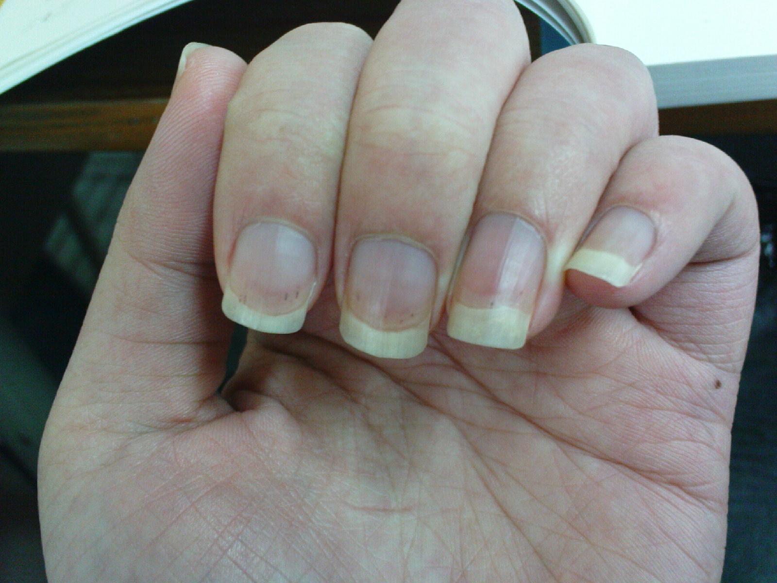 手指甲上长了黑色的东西,为什么?图片