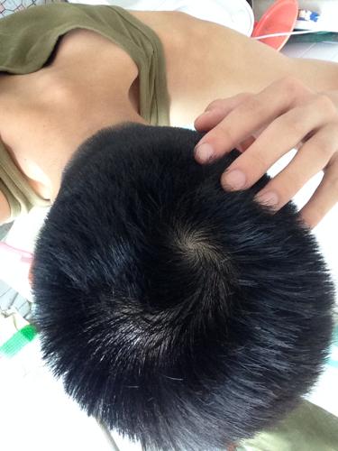 头顶2个旋,头发少,怎么办?图片