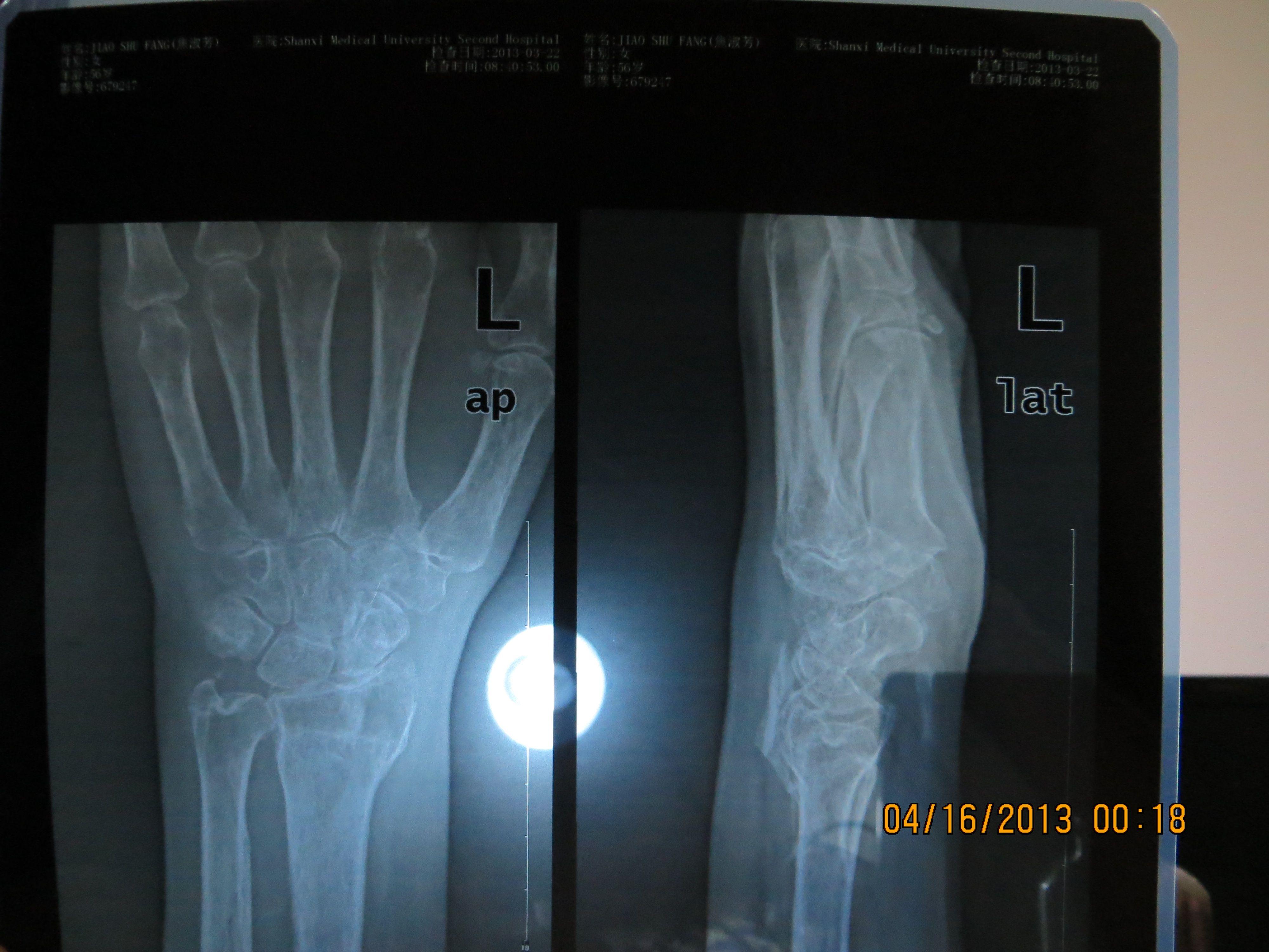 老妈 去年12月4日 ,摔倒后 左手腕骨折. 现在每天左手图片
