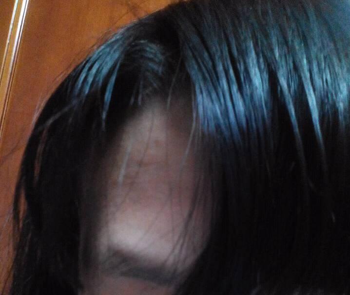 头发一湿就会很明显特别丑图片