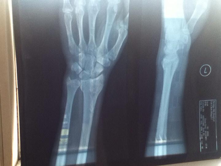 手腕骨折如图,多长时间可拆石膏?图片