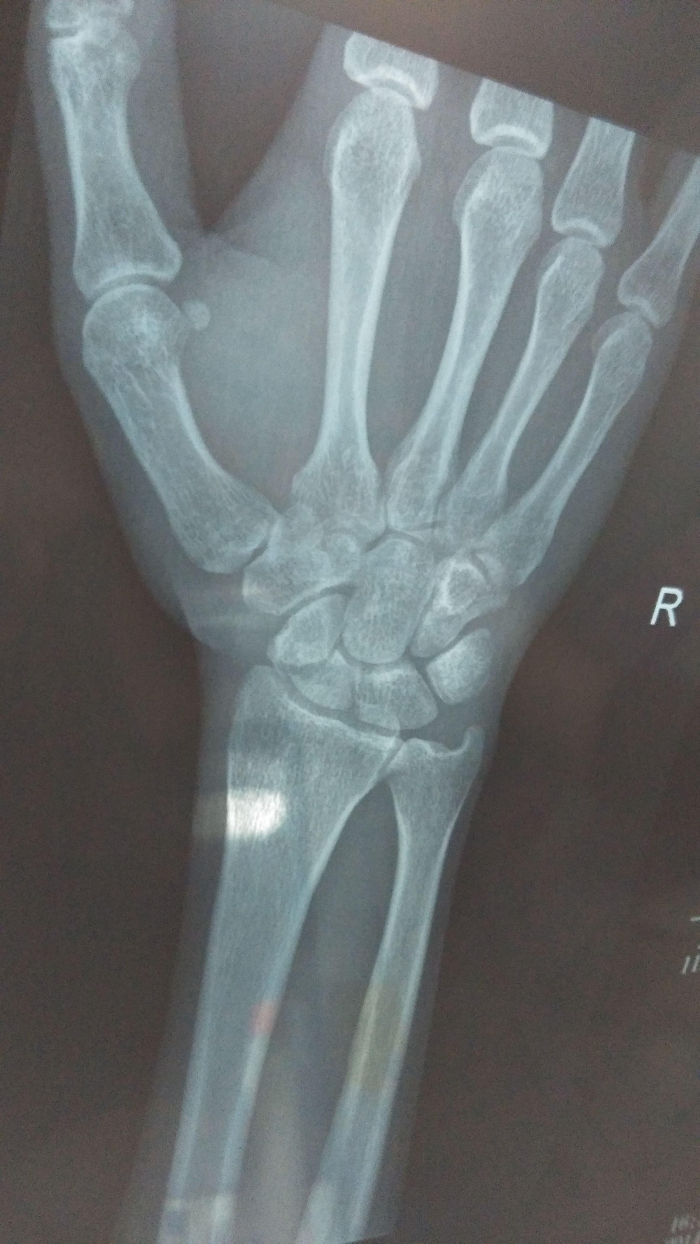 2014-07-18 徐清芝 医师 小孩手臂弯曲处骨裂,手腕处发青,要紧吗?图片