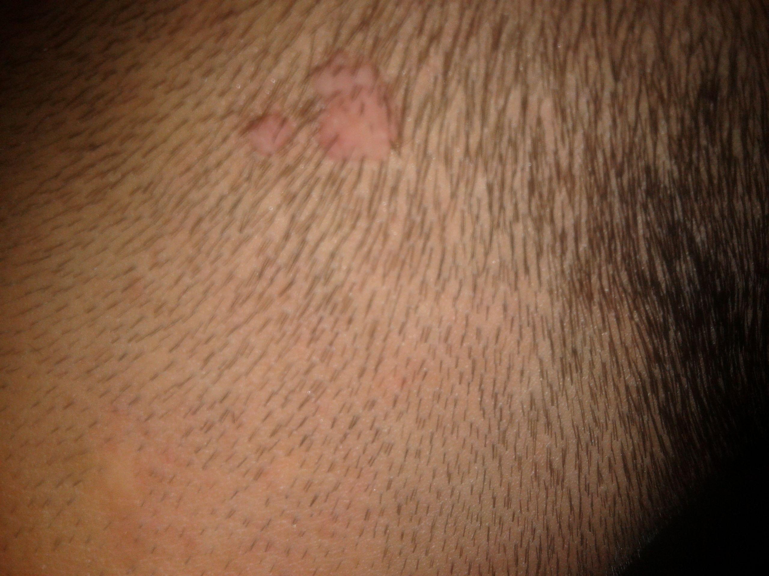 头上长了个痂, 不疼不痒, 有两年了,不知道是什么图片