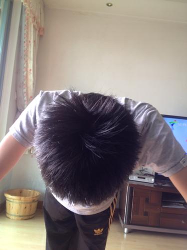 2回答 头顶中间头发少,长点红点,以后会不会秃啊, 1回答 头发中间像图片