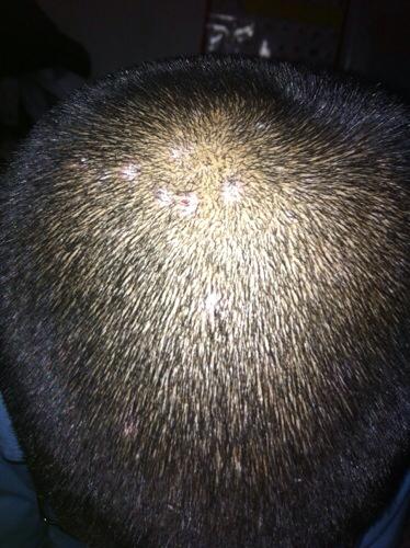 孩子11岁,可是头发里长出许多硬硬的疙瘩,用手一抠就掉头皮,还掉头发图片