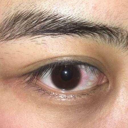 黑眼球上有个白点图片_眼睛黑眼珠上有一个白点,旁边的白眼珠还有很多血丝,滴了治疗眼睛充血
