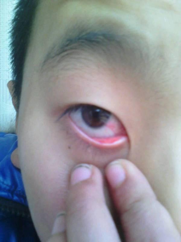眼球血丝_眼睛有血丝该怎么办