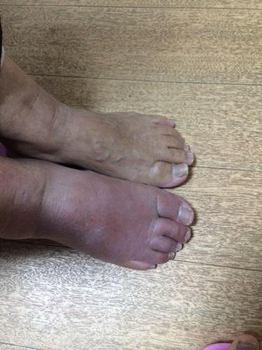 答——该   如何治疗和预防   我也 右下腹有点疼不知怎么回事   右脚图片