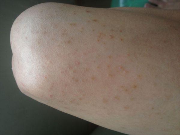 如何治疗懊恼的大腿皮肤病?图片