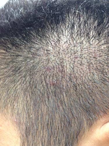 我两边太阳穴的头发里长了很多小红点是怎么图片