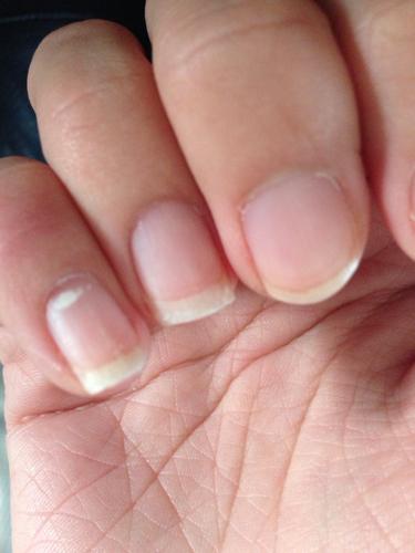 我的手指甲很薄,很多层.也很容易断,也没图片
