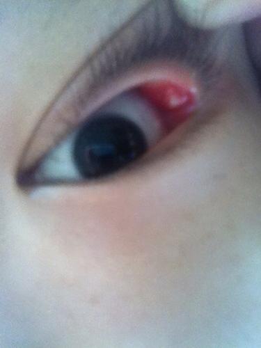 眼球上长了个白色疙瘩_左上眼皮内长了一白色小疙瘩,有点痛有点肿
