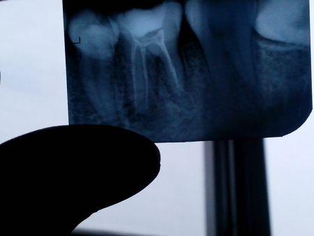拍个牙片多少钱