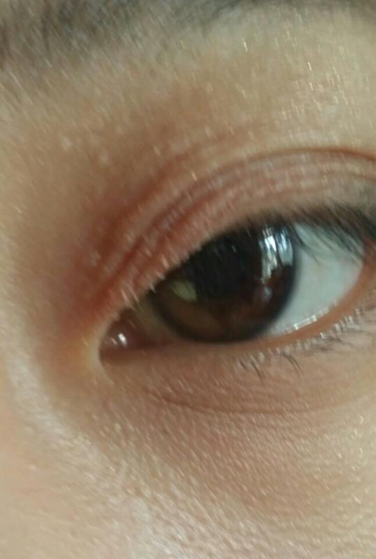 眼球上长了个白色疙瘩_眼皮长了一些小疙瘩最近发现眼睛上